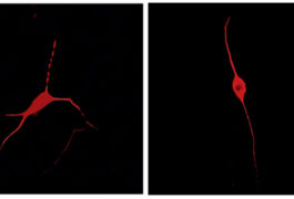 Neurons derived from people with autism make unusually few branches (right). Exposing them to control astrocytes fixes the problem (left).
