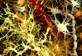 Microglia (white), the brain's resident immune cells, have been implicated in autism.