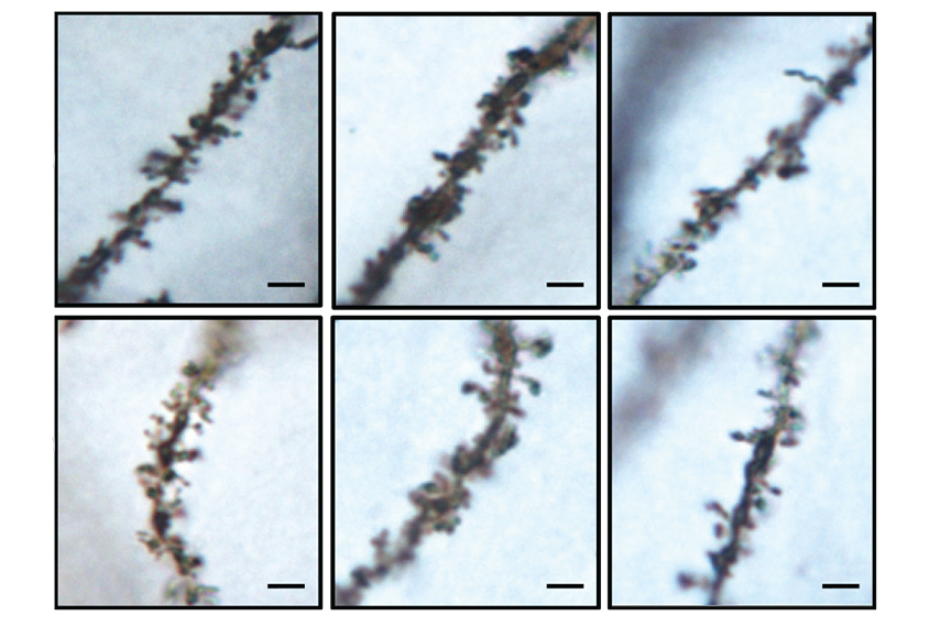 Mice lacking KCTD13 have shorter and fewer neuronal branches (middle and right) compared with controls (left).