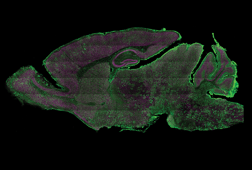 Neurons in a mouse brain glow green after a virus carrying specialized molecular tools edits their genomes.