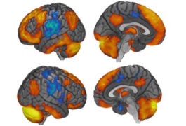 four brains with the RCrusl section highlighted