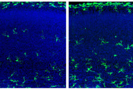 Male fetal mice that lack a microbiome have more microglia (green, right) in certain brain regions than controls do (left).