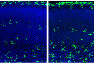 Male fetal mice that lack a microbiome have more microglia (green, right) in certain brain regions than controls do (left).