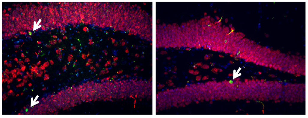 Mice lacking one copy of MEF2C have fewer neurons (red and green, right) in the hippocampus than controls do (left).