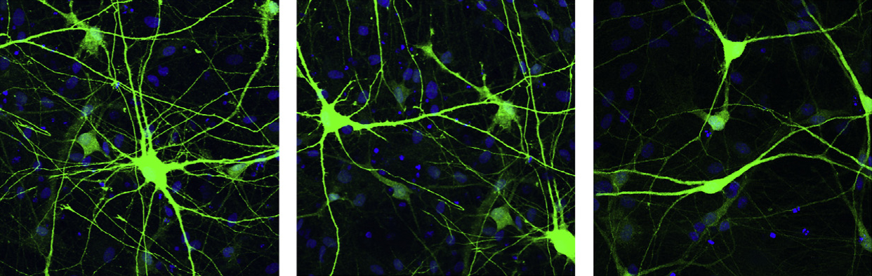 Neurons missing a part of chromosome 16 (left) are larger and have more branches than control neurons (middle); neurons with duplications of the region are small and sport short dendrites (right).