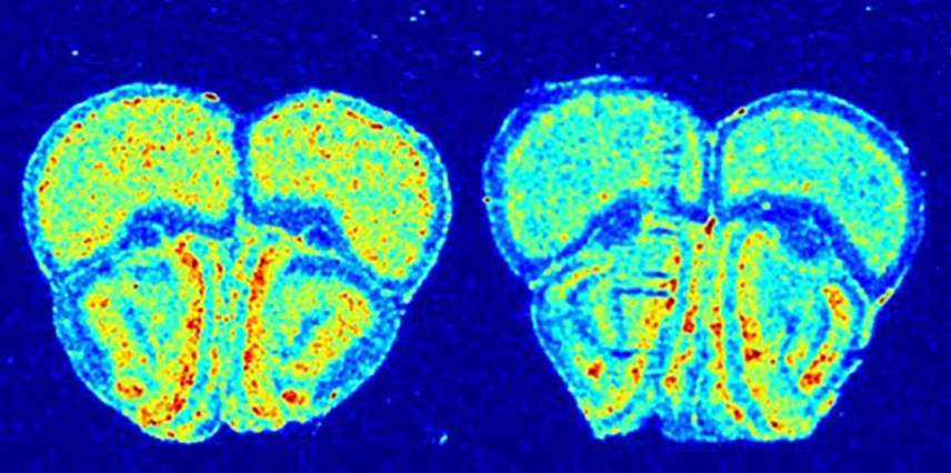 A mouse model of tuberous sclerosis (right) shows less protein synthesis in the brain than a control (left).