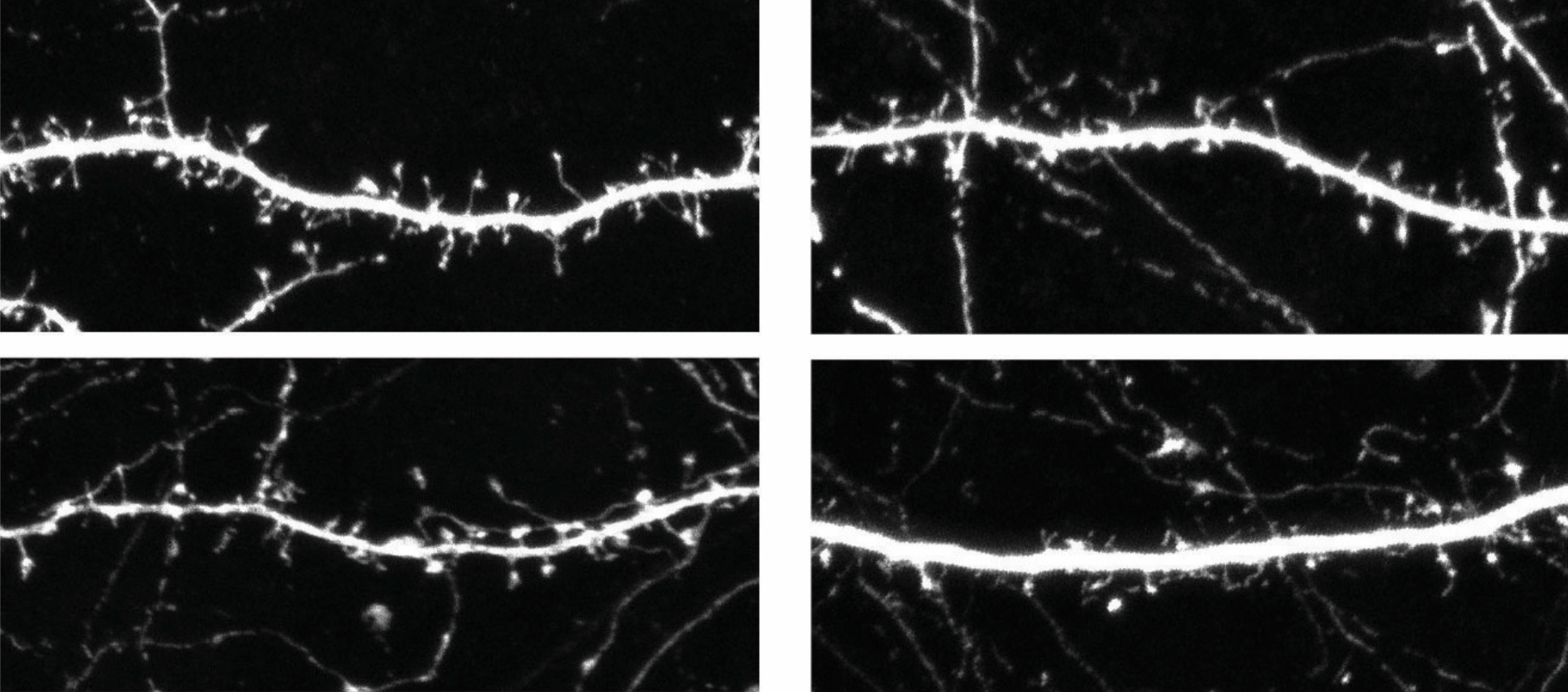 Neurons from mice missing OTUD7A (right) have fewer spines than do those from controls (left).