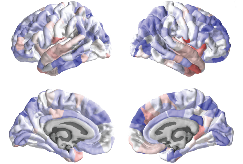 four brains sliced to show varying thickness