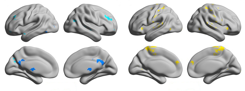 eight brains with different regions highlighted