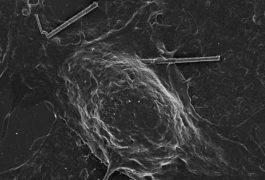 A silicon nanowire touches the membrane of a rat neuron.