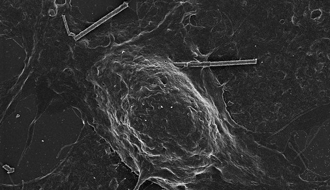 A silicon nanowire touches the membrane of a rat neuron.