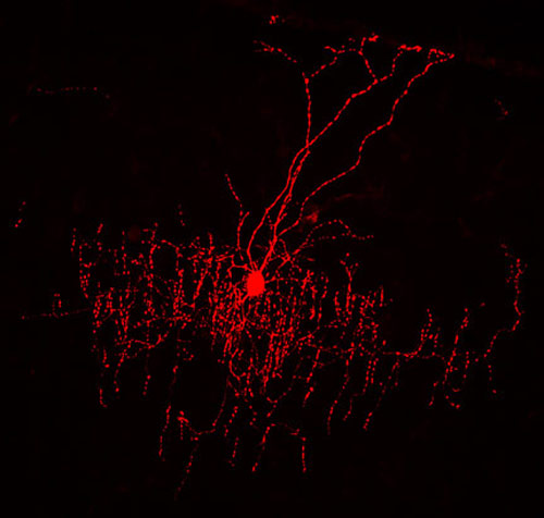 Specialized neurons help explore circuit defects in autism beautiful branches chandelier cells have a very distinctive shape forming candlestick like strings of synapses that line up vertically aloadofball Choice Image