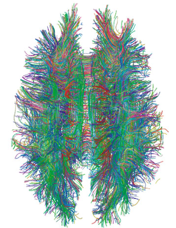 Cognition And Behavior White Matter >> Cognition And Behavior White Matter Shows Delays In Autism