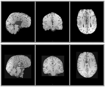 Common brain malformation confers high risk for autism | Spectrum ...