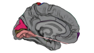 In Autism Brain Shows Unusual Thinning >> In Autism Brain Shows Unusual Thinning Throughout Life