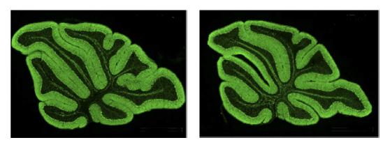 Surplus Of Synapses May Stunt Motor >> Surplus Of Synapses May Stunt Motor Skills In Autism Spectrum