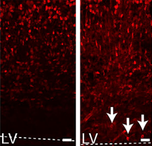 Autism gene guides early neuron development | Spectrum | Autism Research News