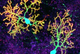 Surplus Of Synapses May Stunt Motor >> Purkinje Cells Archives Spectrum Autism Research News