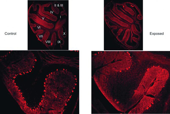 Mouse brain images showing fewer Purkinje cells in mothers with virus infection vs control brains.