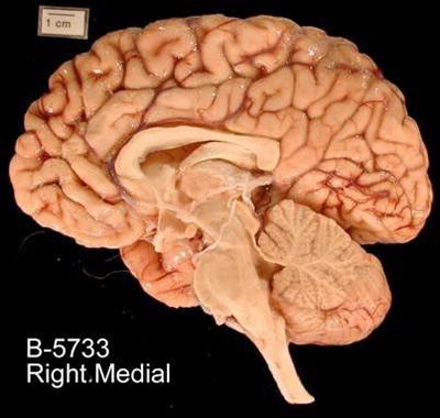 brain scan chromosome 22