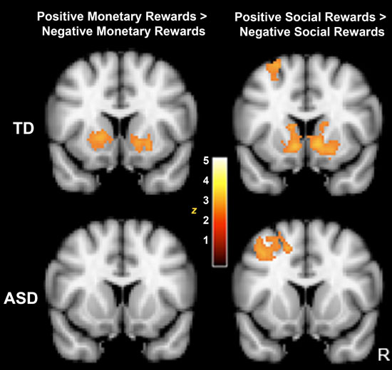 Brains Of People With Autism Spectrum >> Social Interactions Not Rewarding For Children With Autism