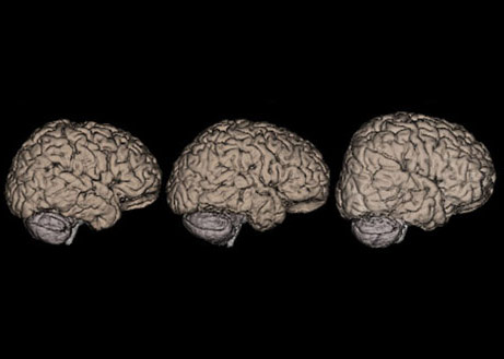Study links brain size to regr...