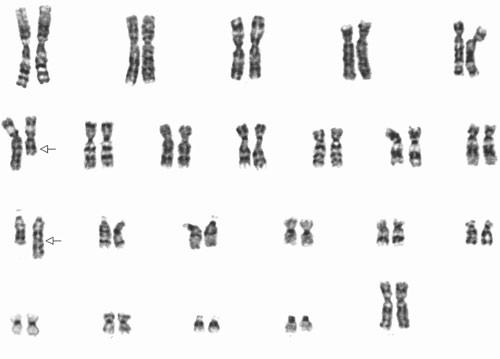chromosome exchanges reveal new autism related genes spectrum