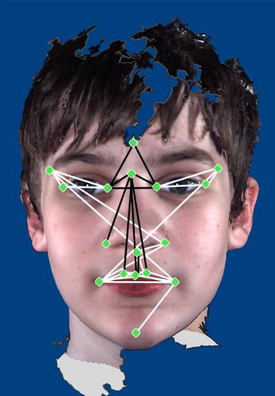 Facial features provide clue to autism severity | Spectrum