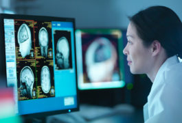 Woman in lab coat reviews brain scan images on a computer monitor.