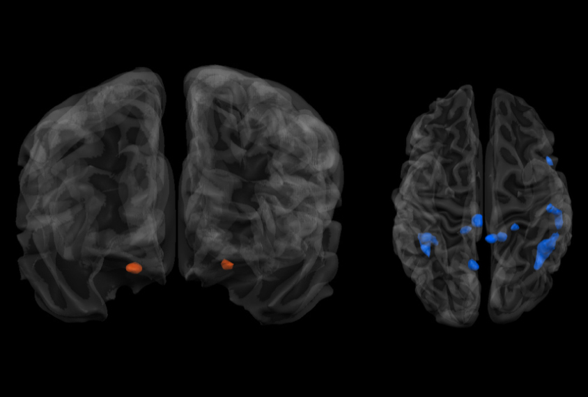 Brains Of People With Autism Spectrum >> Social Smells Evoke Unusual Responses In People With Autism