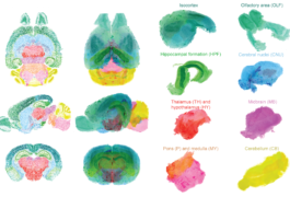 Various colored mouse brain sections.