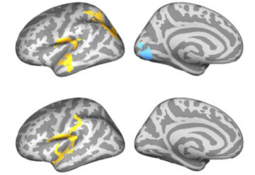 Four brains showing some regions yellow and some blue.