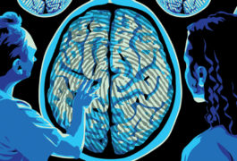 Two doctors look at a brain scan with a 'fingerprint' pattern over the grey matter area.