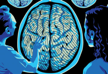 """Two doctors look at a brain scan with a """"fingerprint"""" pattern over the grey matter area."""