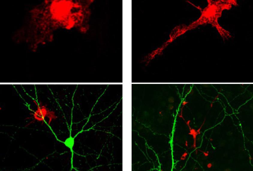 Study Points To More Reliable Autism >> Autism S Sex Bias May Originate In Brain S Immune Cells Spectrum