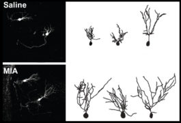 Outlines of mice neurons have long branches.