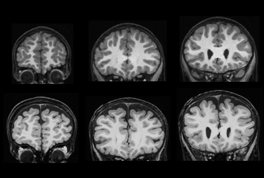 Autism Resolves In Some Kids But >> Young Children With Autism May Show Brain Fluid Buildup Spectrum