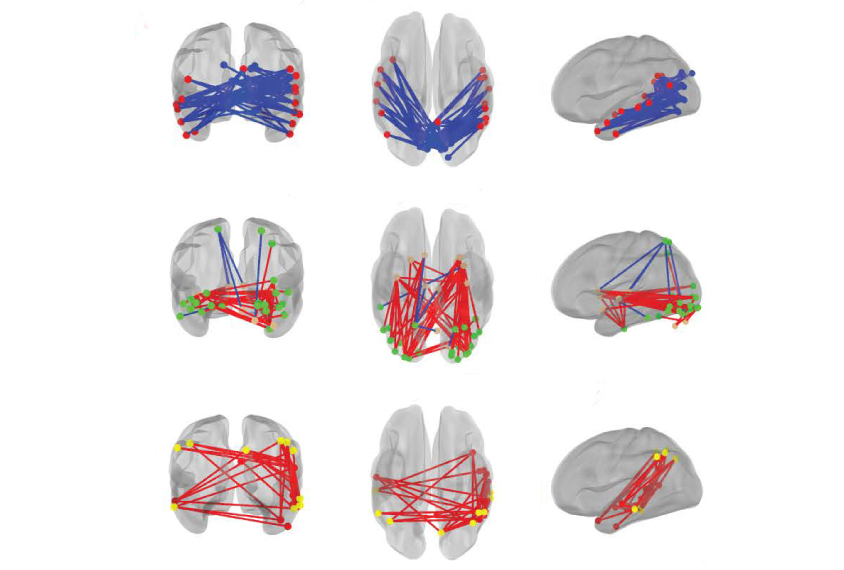 Three columns of brain images show patterns of brain connections.
