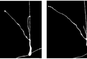Black and white images shows human neurons grafted onto a mouse brain grow over time.