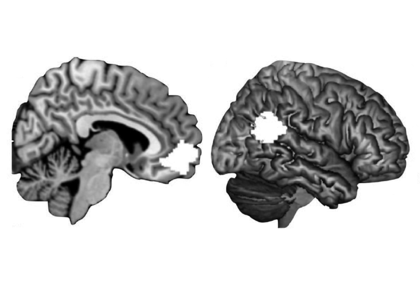 Two brain images highlight social areas.