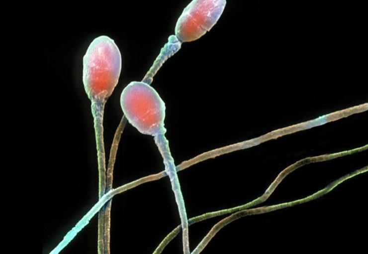 microsopy of human sperm
