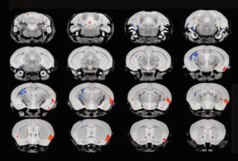 A series of 3D mouse brains