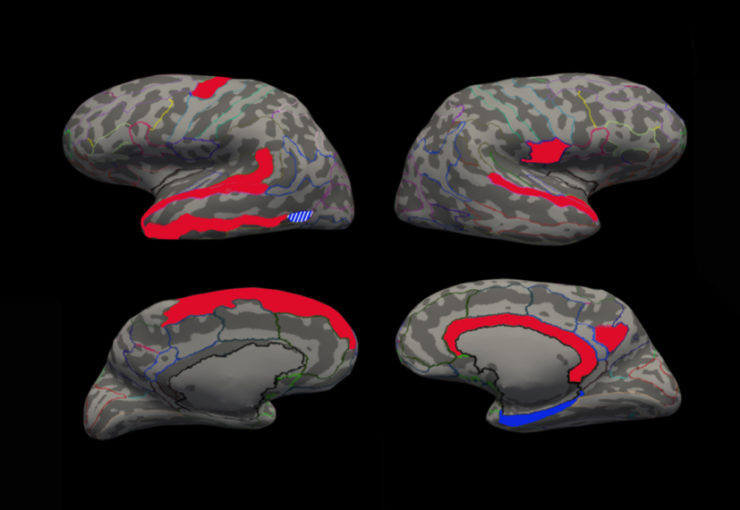 3D models of the human brain