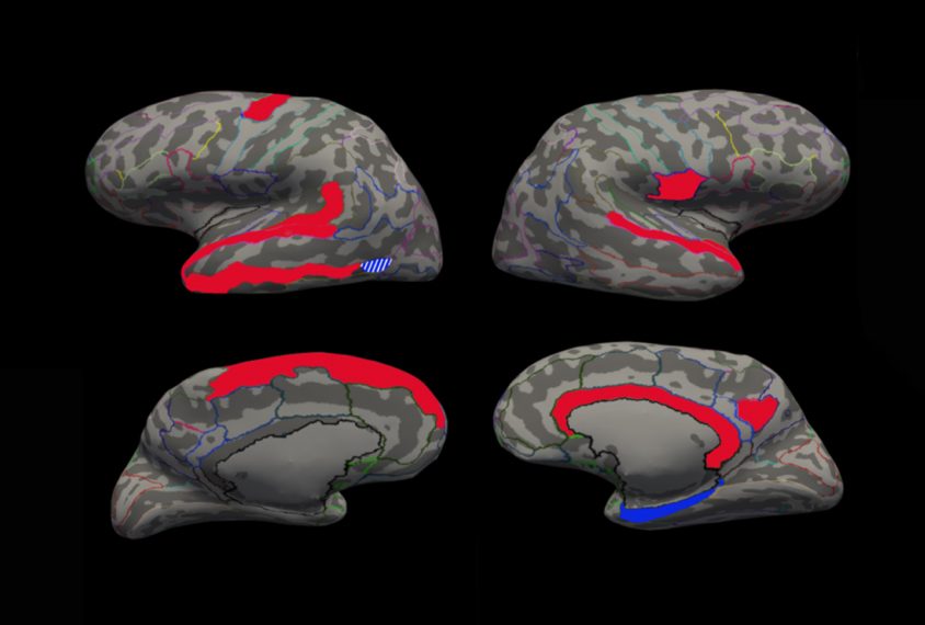 Why Autism Is Different In Brains Of >> Changes In Brain Anatomy May Reflect Autism Traits Spectrum