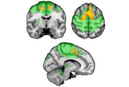 Three views of the human brain show connectivity