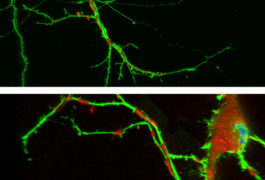 Doubt Greets Reports Of Suramins >> Mitochondria Archives Spectrum Autism Research News