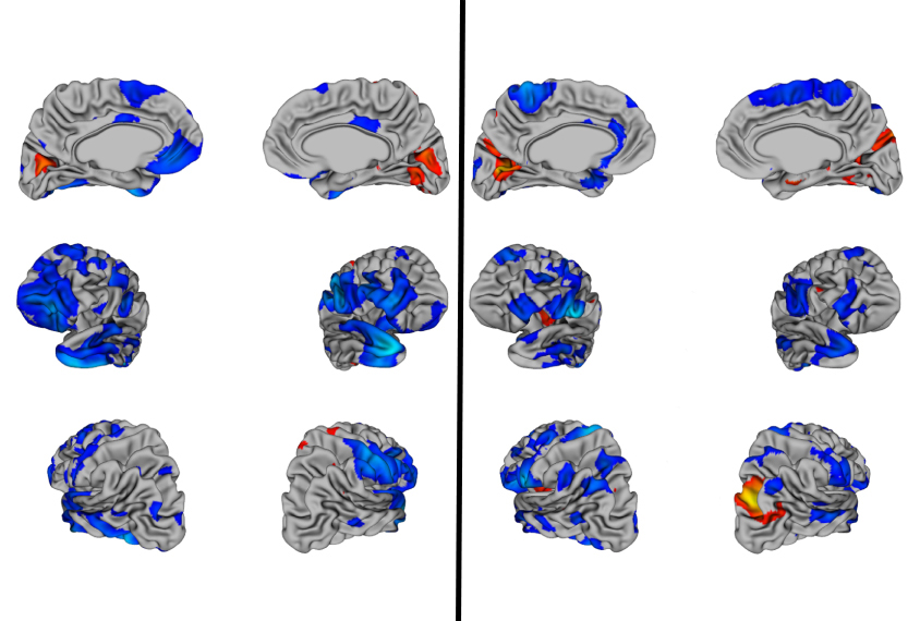 In Autism Brain Shows Unusual Thinning >> Large Set Of Brain Scans Reveals No Telltale Signs Of Autism