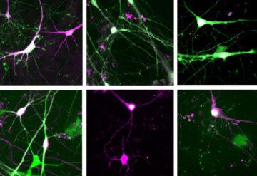 grid of lab grown neurons