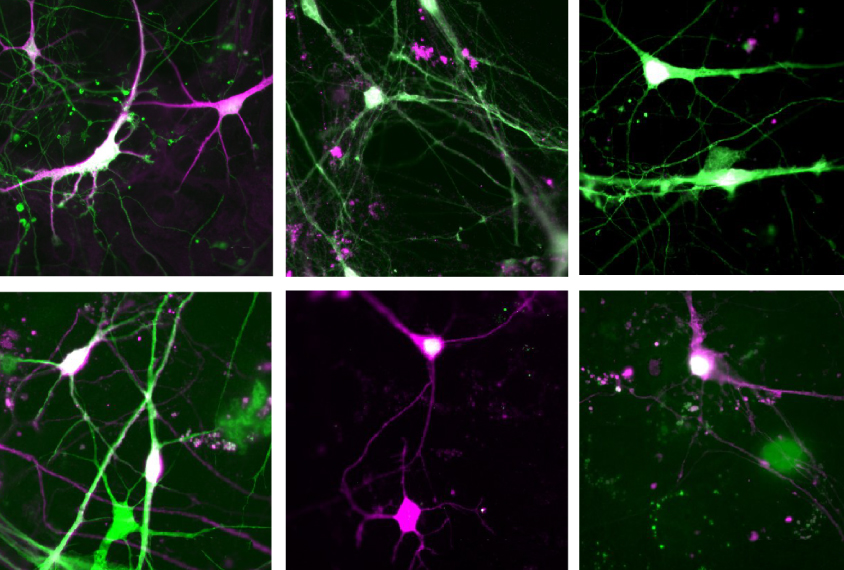 grid of lab grown neurons