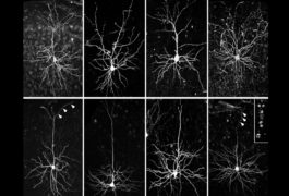 老鼠的神经元在一个网格中显示出差异